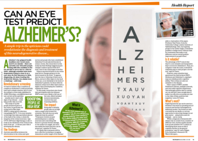 Can a simple eye test diagnose dementia?  Woman magazine